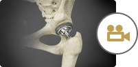Total Hip Replacement THR