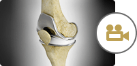 Total Knee Replacement TKR