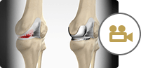 Unicondylar (Unicompartmental) Knee Replacement
